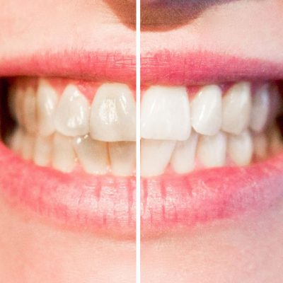 avondale-dental-clinic-wicklow-tooth-whitening