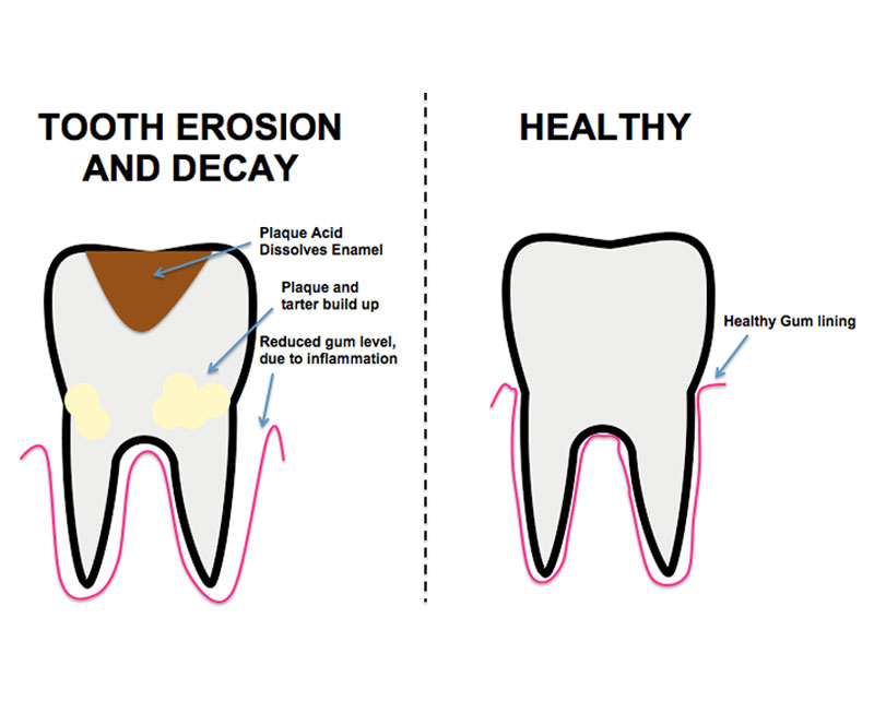 diagram of tooth extraction gallery how to guide and refrence causal loop diagramming outcome engenuity causal diagramming tool